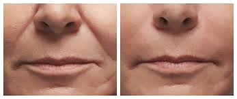 RADIESSE Volumizing Filler REVIVE Skin & Laser Clinic