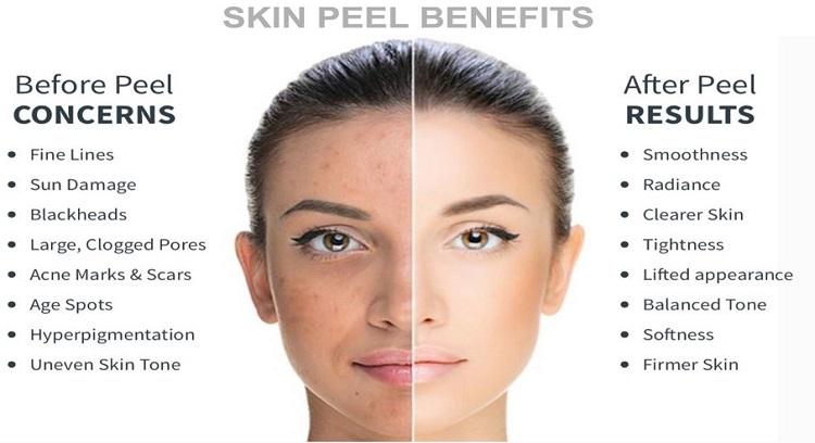 Chemical peel vs facial