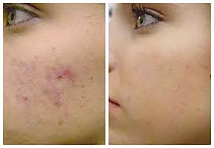 Acne Treatment revive clinic