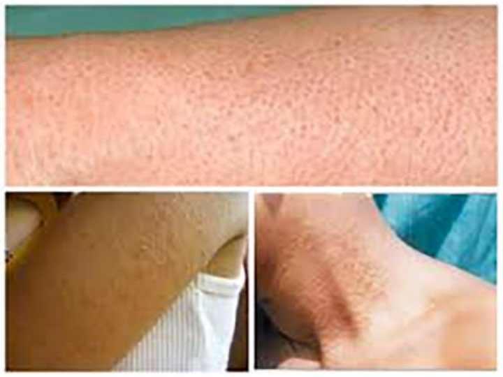Keratosis Pilaris revive clinic