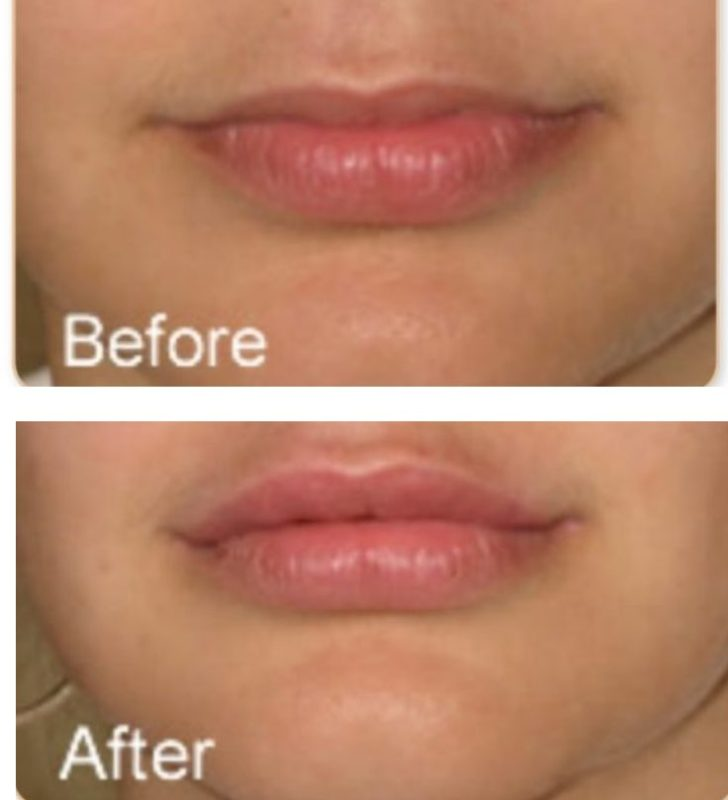 Lip Fillers revive clinic