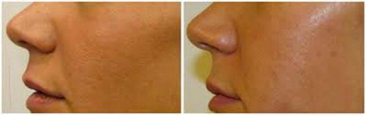 Open Pores revive clinic