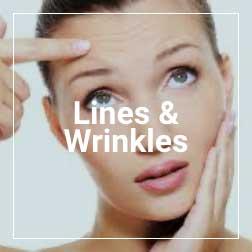 lines-&-wrinkles
